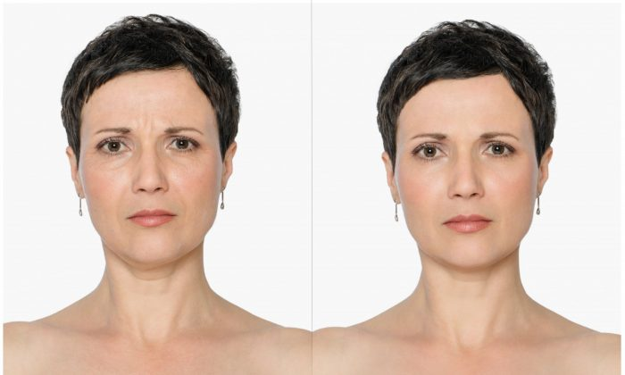 Line Softening (botox)